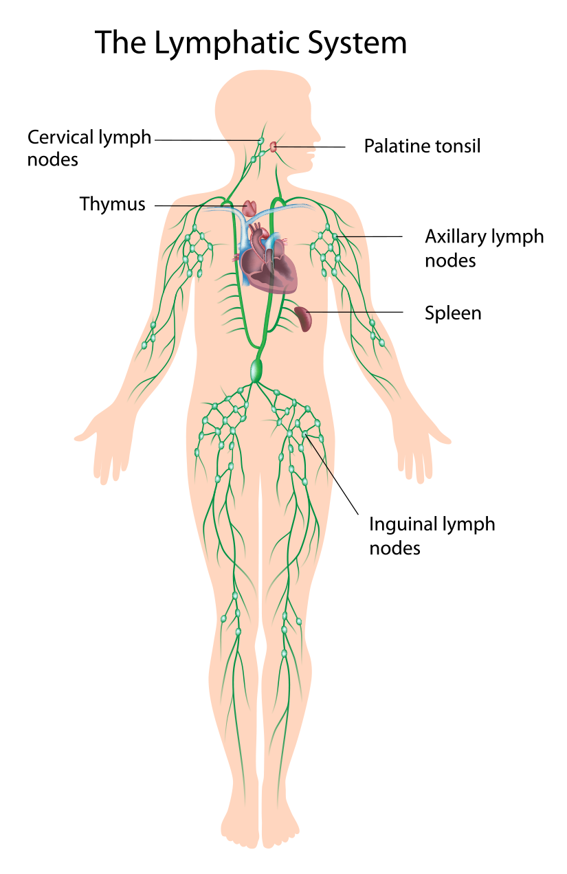 Lymphedema For The Melanoma Patient Melanoma Network Of Canada